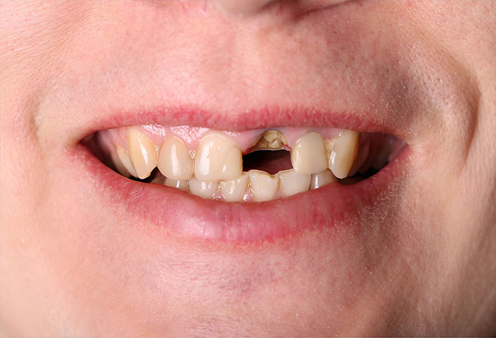 missing front tooth before dental implants