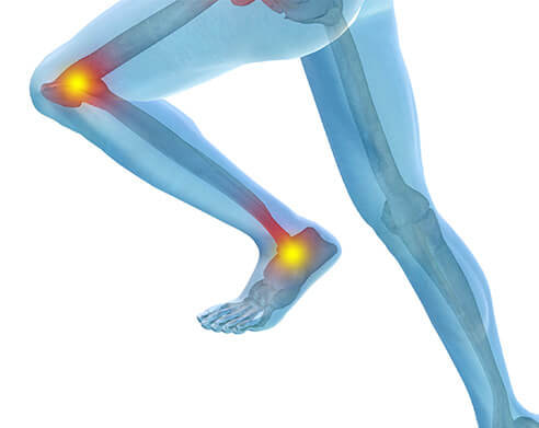 ACLReconstruction