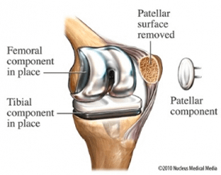 totalkneereplacementsurgery