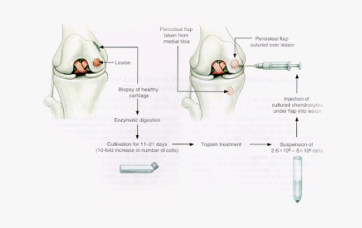 knee cartilage repair