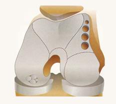 kneecartilagerepair diagram