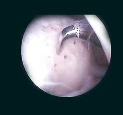 knee cartilage image