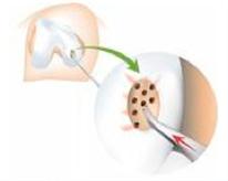 kneearthroscopy-image