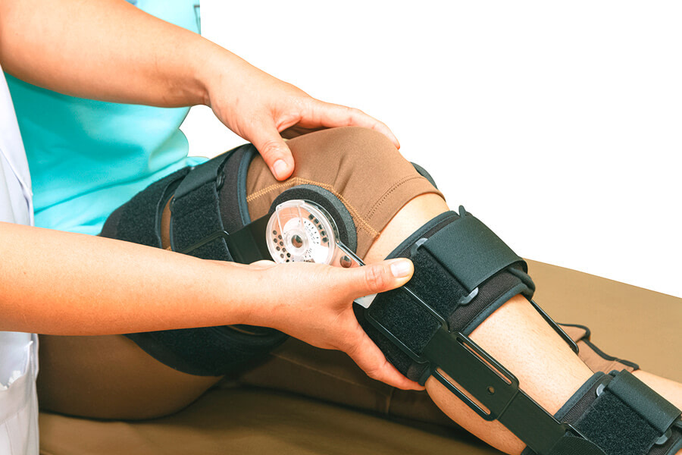Should I Wear a Custom ACL Knee Brace after Surgery?